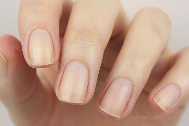 Naegel nach dem Entfernen der Nagelhaut