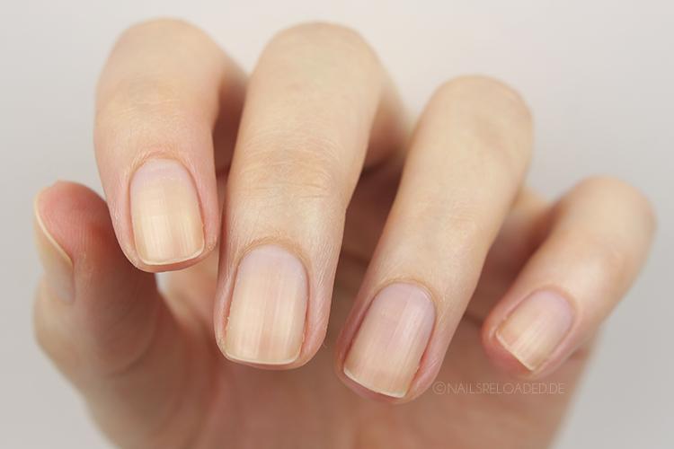 Nägel vor Verwendung von Nagelöl