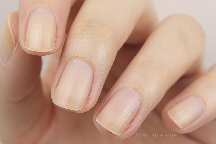 Naegel vor dem Entfernen der Nagelhaut